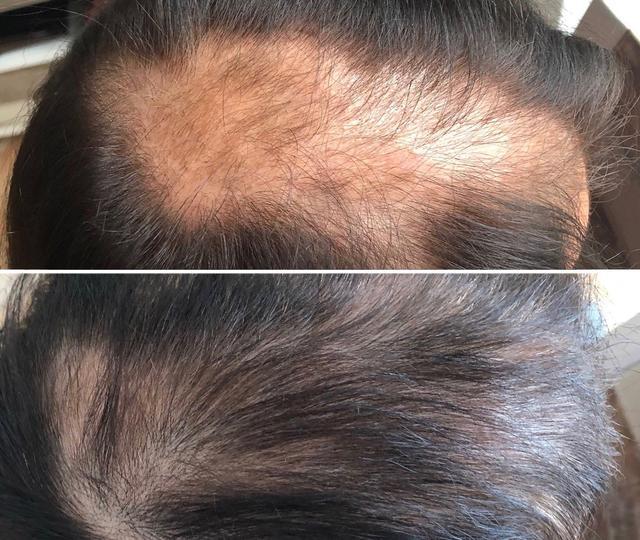 Haarausfall - vorher und nachher